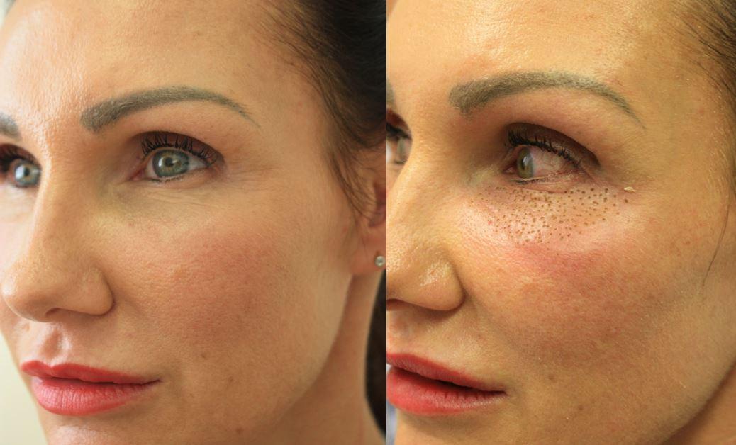 Plasma Eyelid Lift Eye Bag Reduction Manchester Diane Nivern Clinic