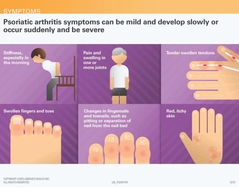 Psoriasis and Psoriatic Arthritis via psoriasis.org
