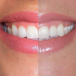 How to get your whitest smile at home- Diariesofdanielle.com