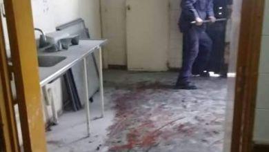 Photo of Dos Incendios en el Servicio de Salud Mental y Cardiología