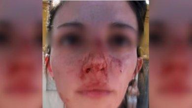 Photo of Violencia de Género: La golpeó en plena calle y delante de su hijo de cinco años