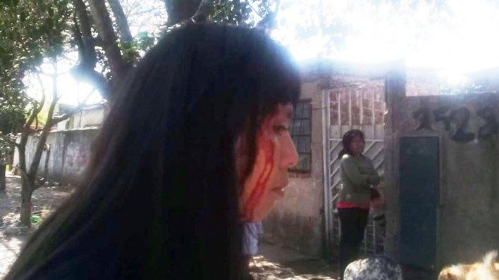 Morón: Atacan a una joven
