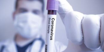 test, rápidos, coronavirus, camioneros,
