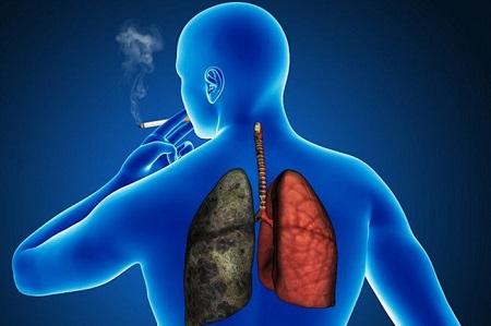 La exposición al humo del cigarrillo sigue siendo la principal causante de este mal