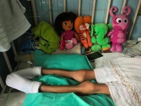 Al menos 16 % de los niños venezolanos sufrió de desnutrición en 2017, según ONG