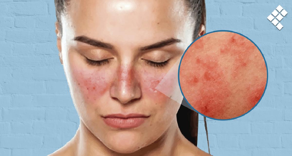 Lupus: opciones de tratamiento