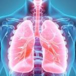 El cáncer de pulmón es una enfermedad que se puede prevenir