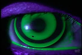 Lentes de contacto nocturnos, una alternativa para ralentizar la miopía infantil