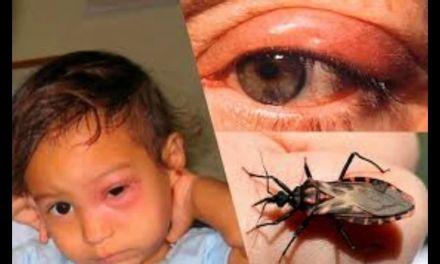 14 de abril, Día Mundial de la Enfermedad de Chagas
