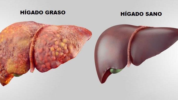 La enfermedad por hígado graso, una pandemia silenciosa
