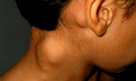 16 de septiembre, Día Mundial del Linfoma