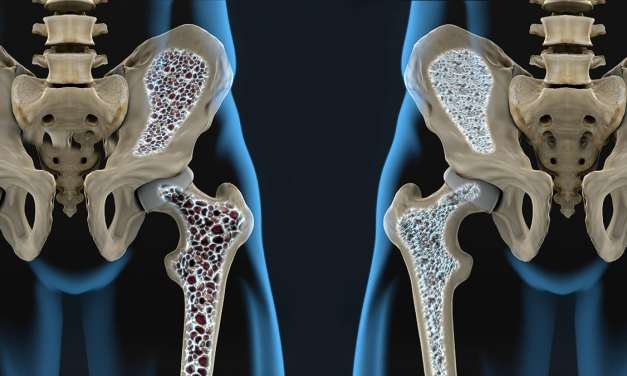 Una de cada tres mujeres mayores de 50 años es afectada por la osteoporosis