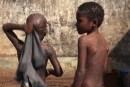 Apparition d'une maladie cutanée chronique dans une famille à Kagbelén: « Un traitement existe… »