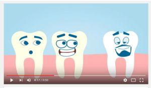 Dibus Molones: La Endodoncia