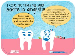 2 cosas que debes saber sobre la gingivitis