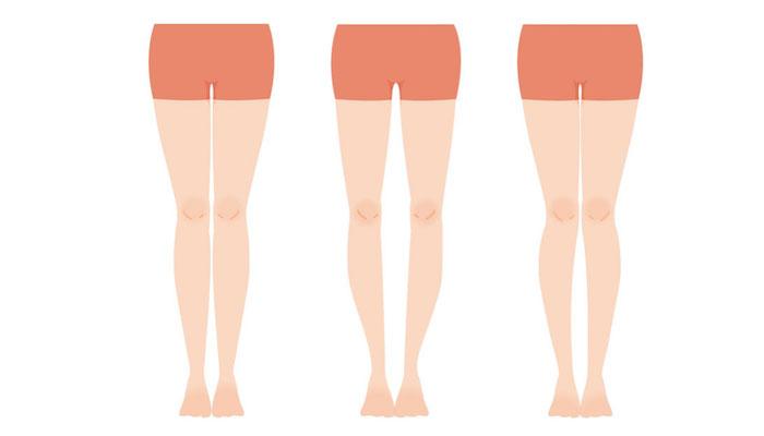 もしかしたらあなたの体の不調はO脚のせいかもしれません! 疲れもコリも体の不調もスッキリ解消のO脚解消術