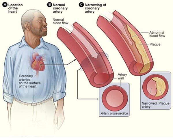 areteriosclerosis