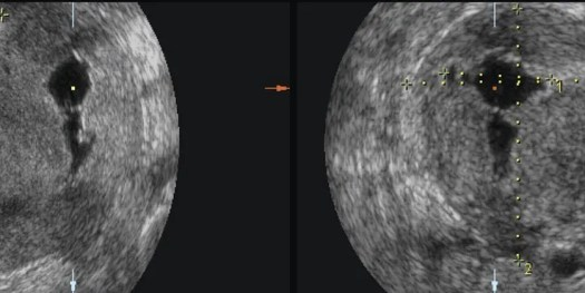 image of Hysterosonography-of-T-shape