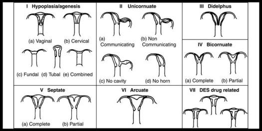 uterinecongenitalanomalies