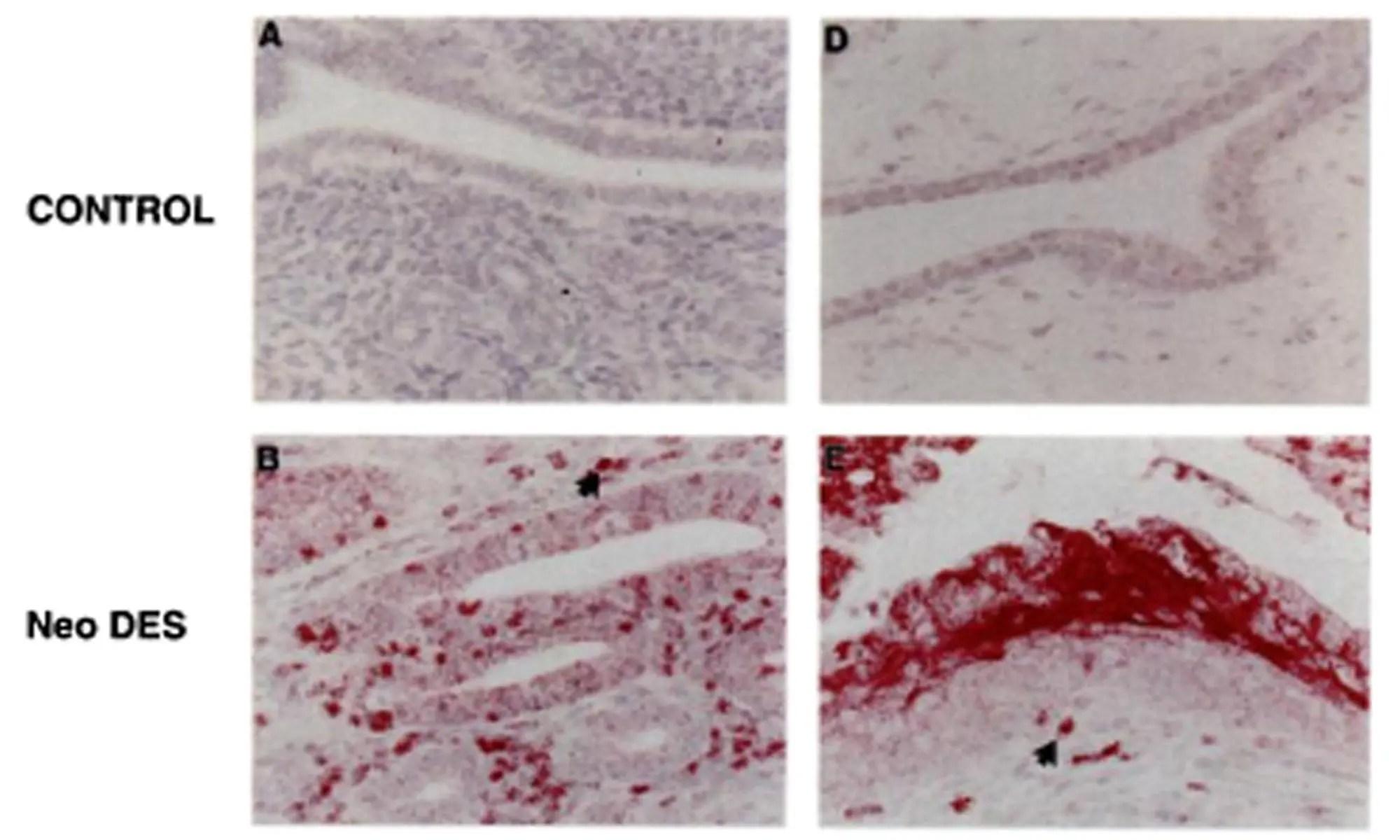 image of estrogen-regulated genes