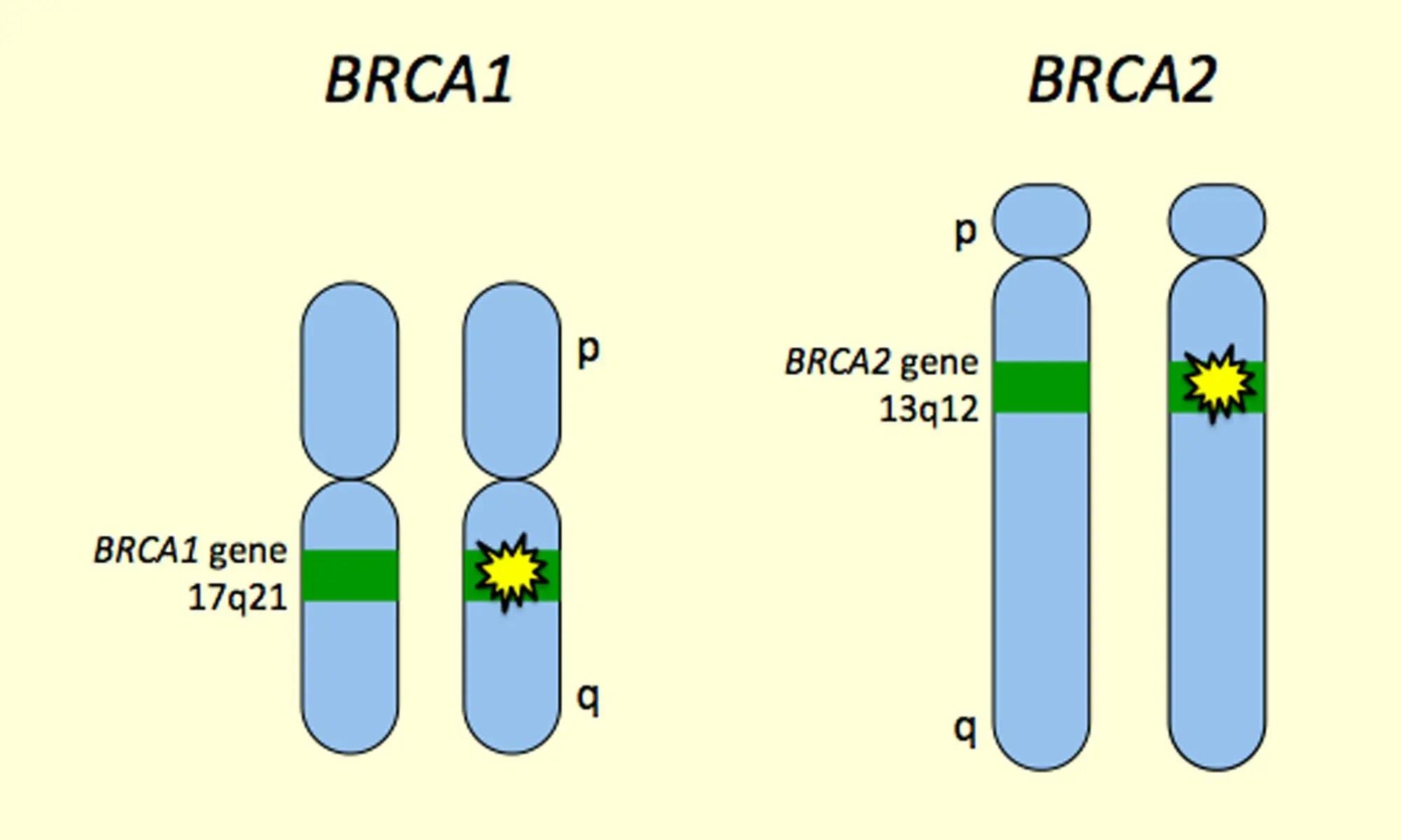 GeneMail | 专家共识:乳腺癌易感基因NGS检测流程标准;Sage $6亿布局亚洲市场