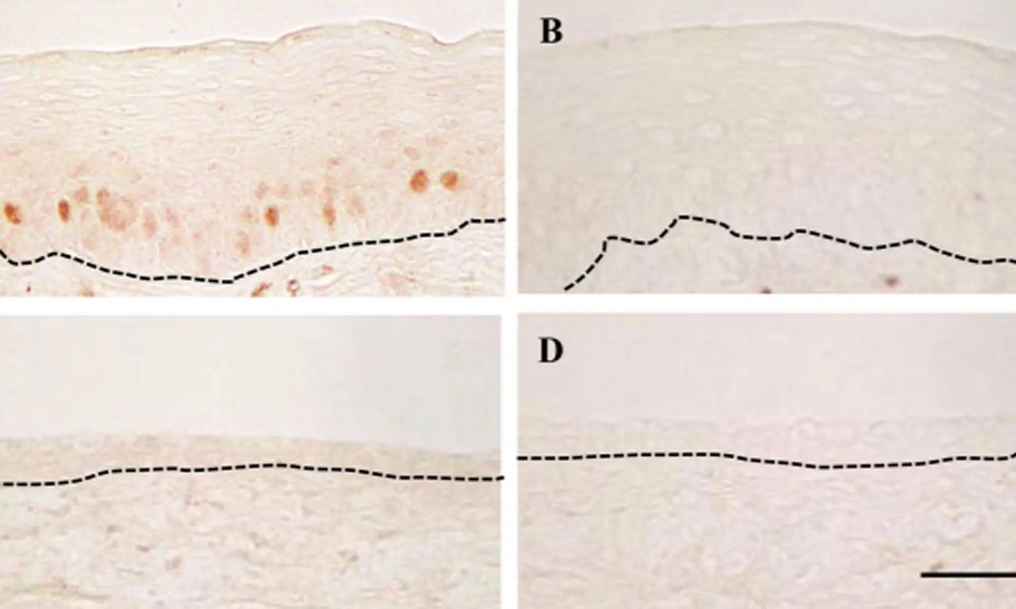 image of p21 altered by neonatal diethylstilbestrol exposure