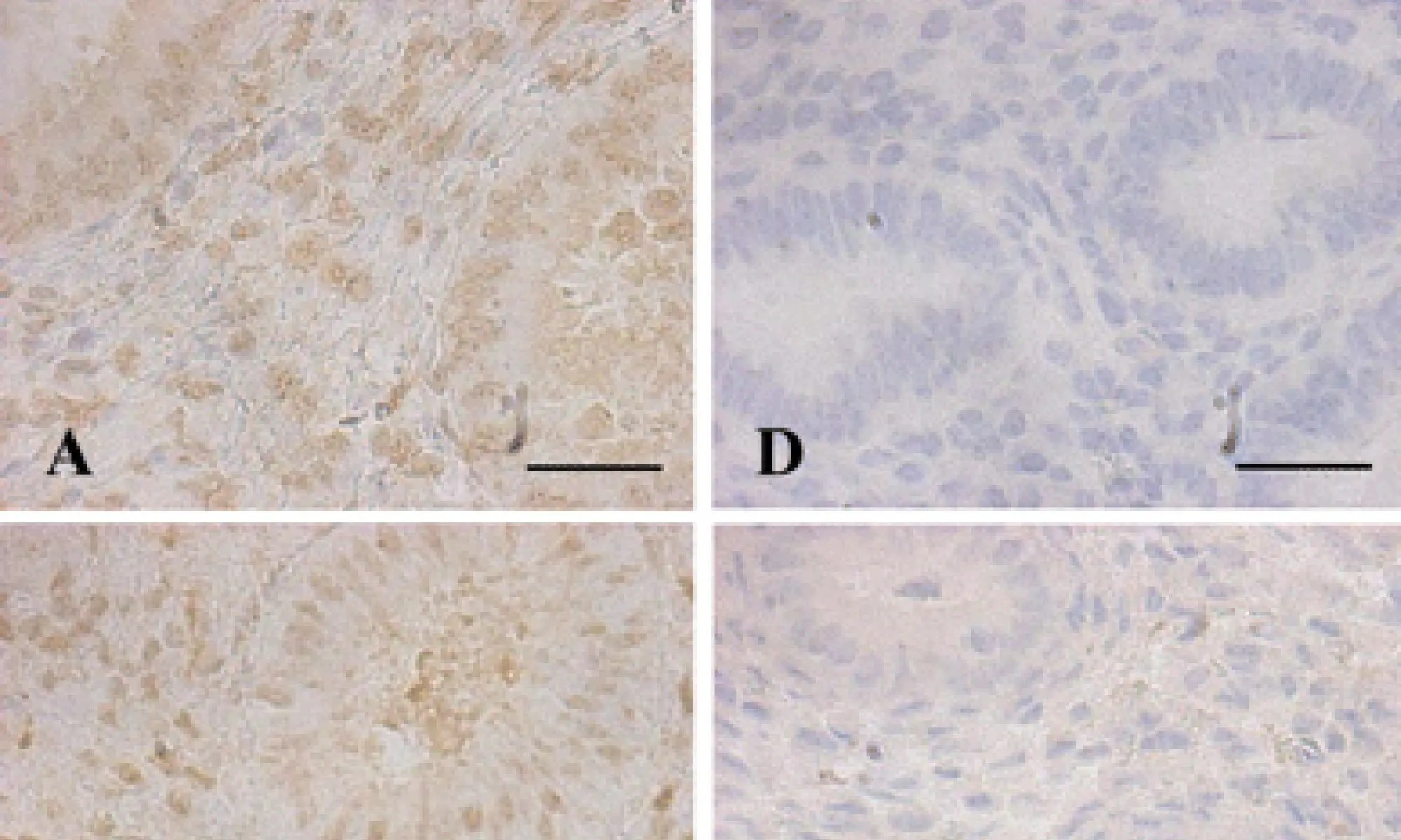 image of DNA methyltransferase expression in the human endometrium