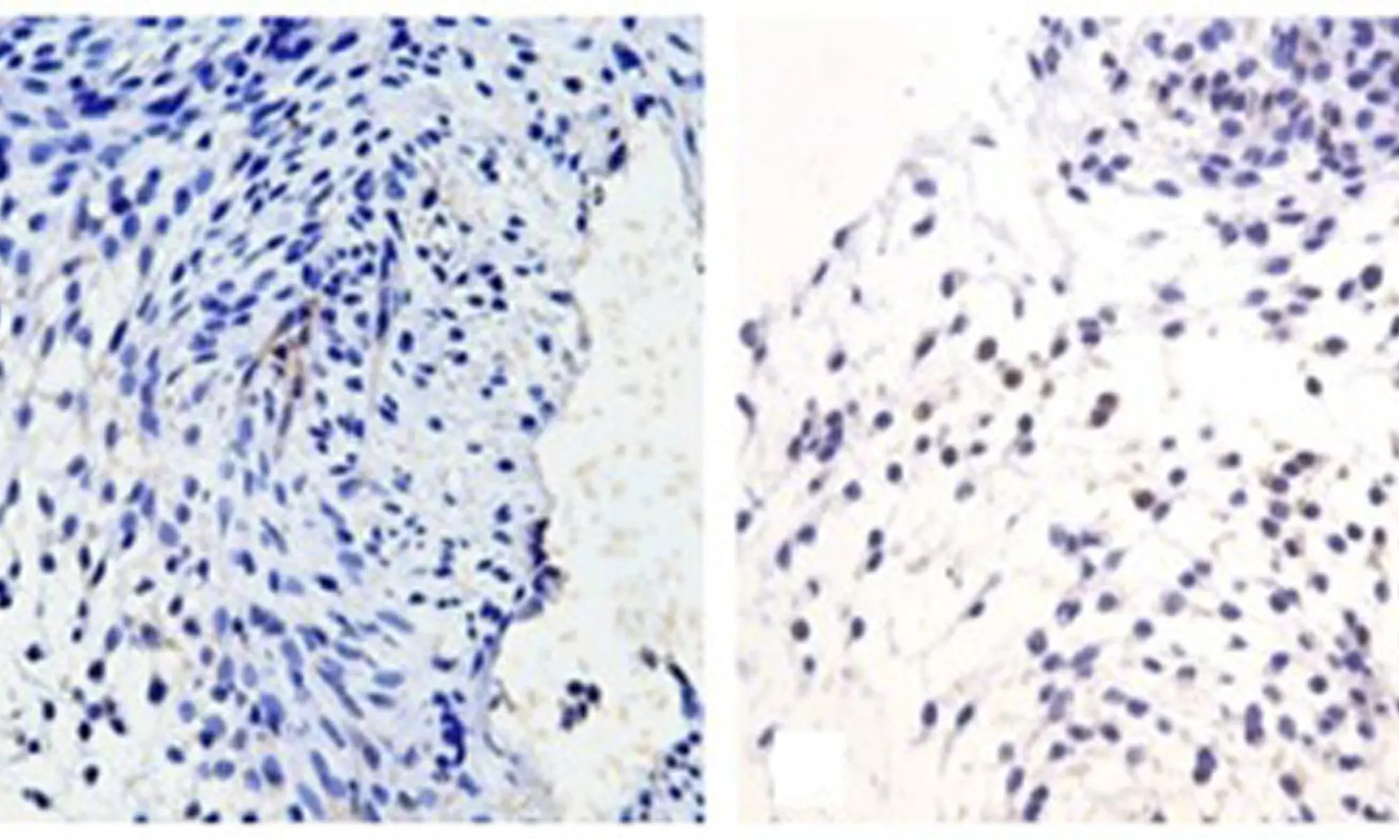 image of Expression of GPER in mouse gubernaculums testis