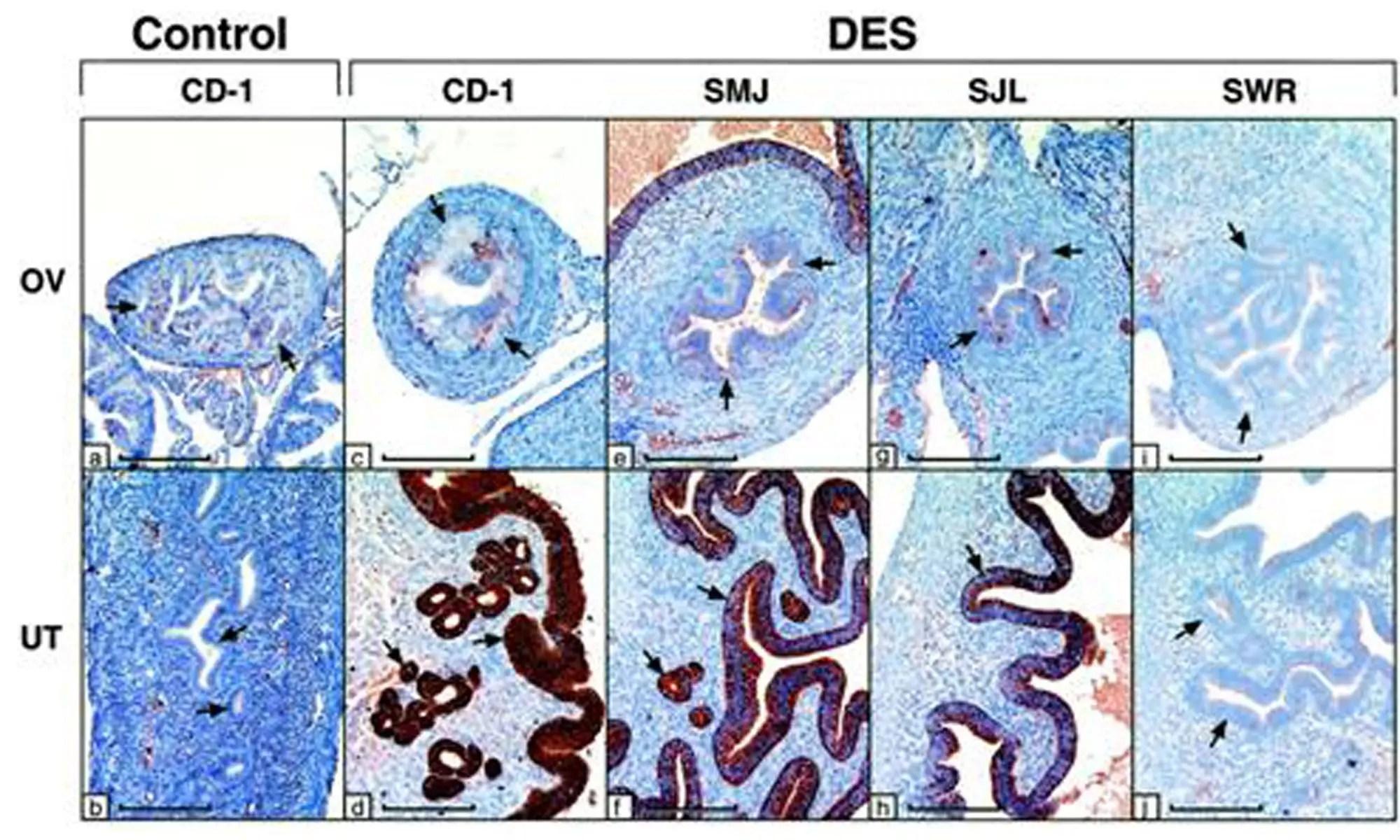 image of lactoferrin-gene and DES response