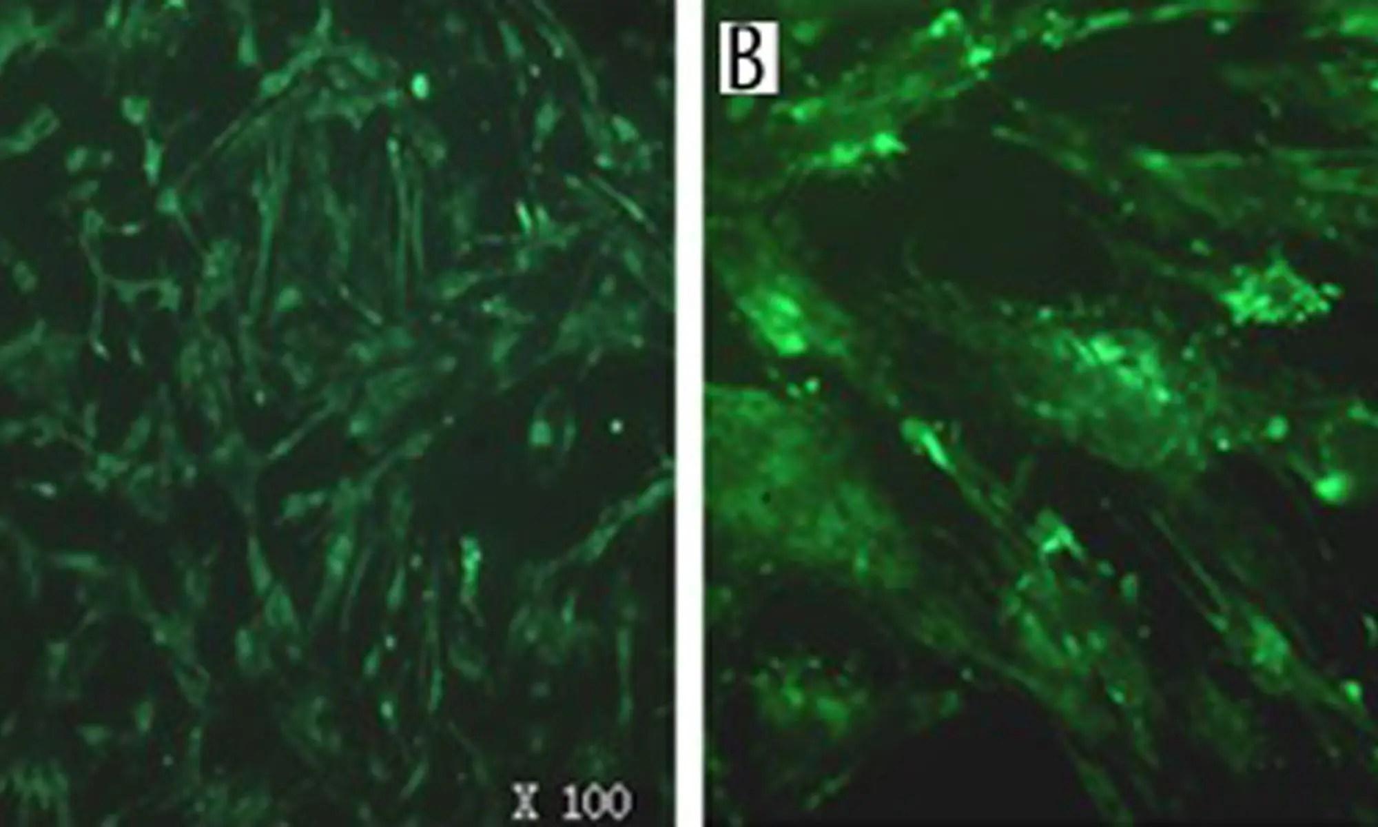 image of LGR8 mRNA