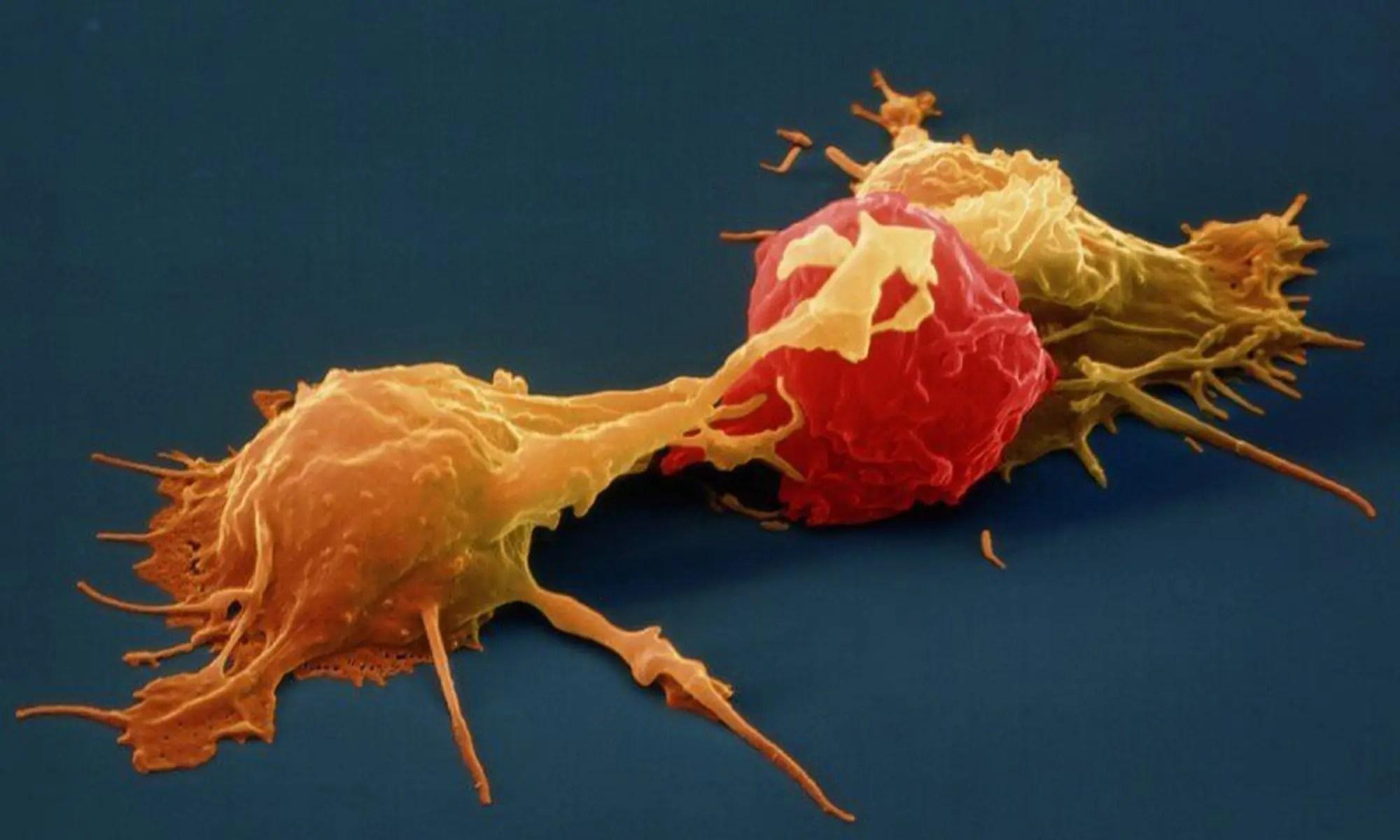 image of Natural killer cells