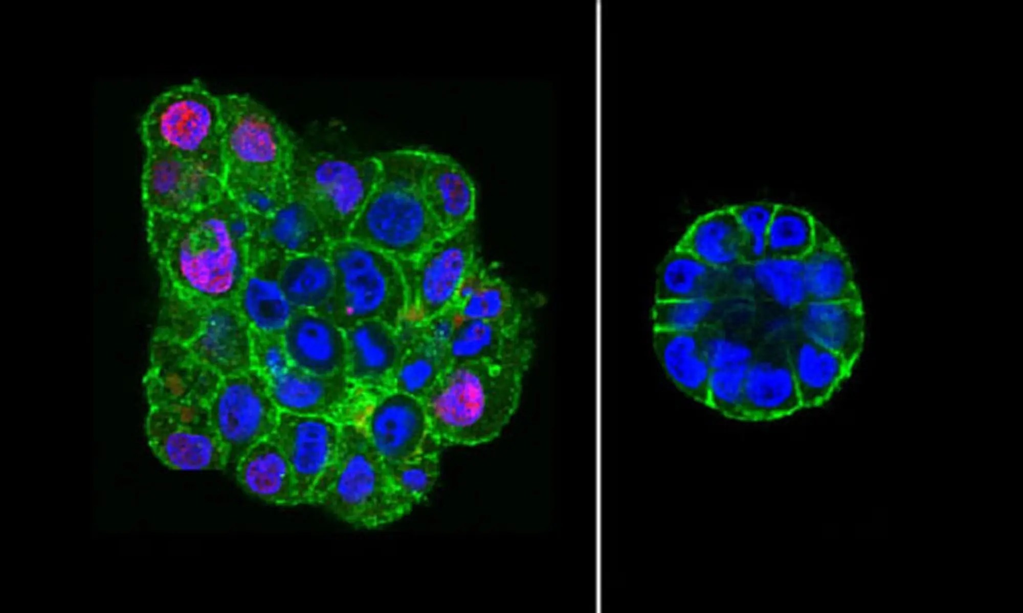 image of breast epithelial cells