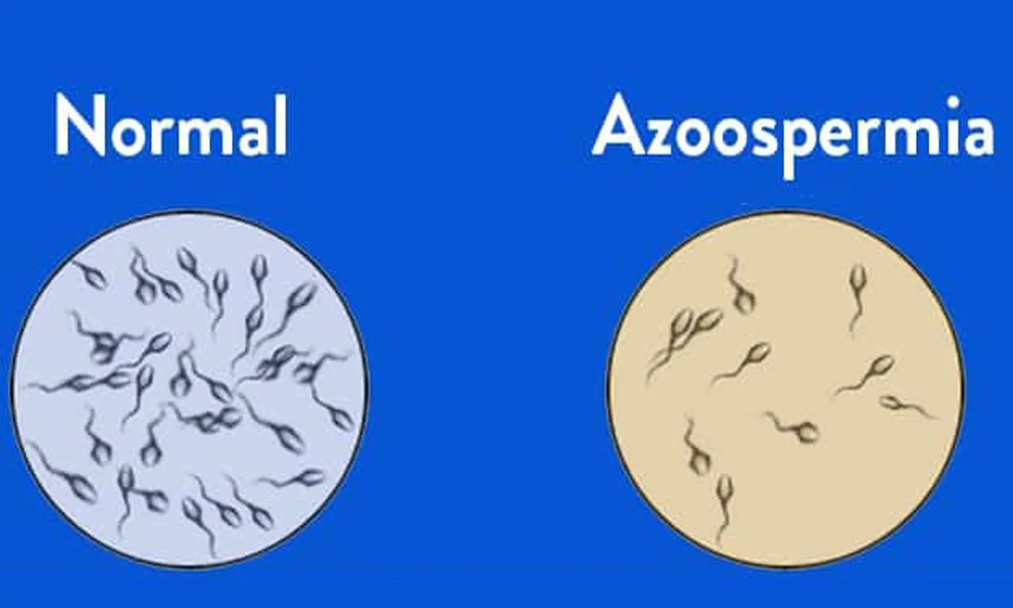 Azoospermia in DES-treated male progeny