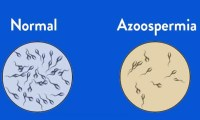 Azoospermia in DES-treated male progeny