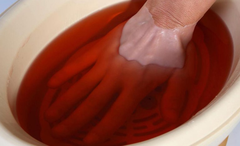 paraffin baths for hands