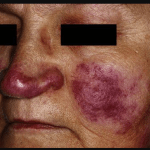 Difference between lupus and sarcoidosis