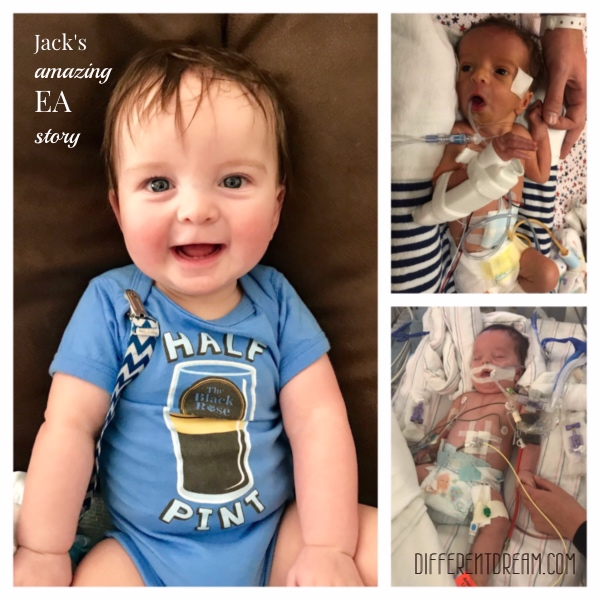 An Esophageal Atresia Story: Jack's Journey