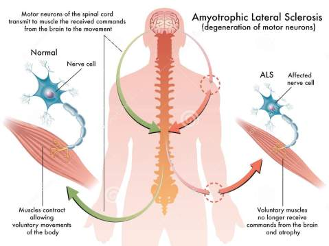 http://www.dreamstime.com/stock-photo-als-amyotrophic-lateral-sclerosis-medical-illustration-symptoms-image44835540