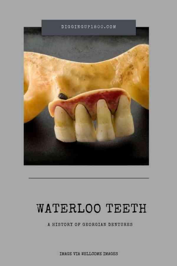 Waterloo Teeth   A History Of Georgian Dentures