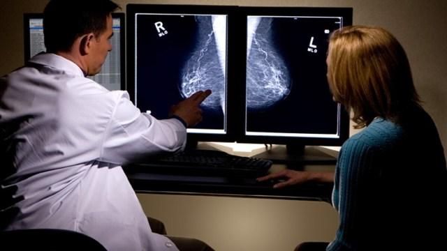 Breast cancer AI