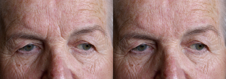 02 spot healing comparison