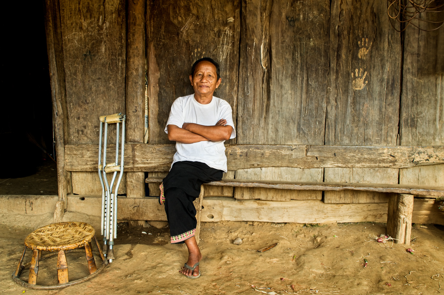 Hmong Amputee sitting outside his home