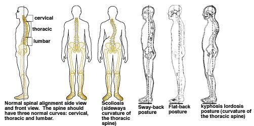 4485 Posture Healthy Back 1