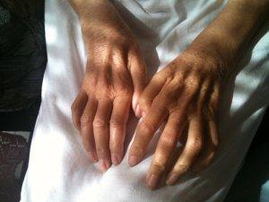 21 de junio: Día Mundial de la Lucha Contra la Esclerosis Lateral Amiotrófica (ELA)