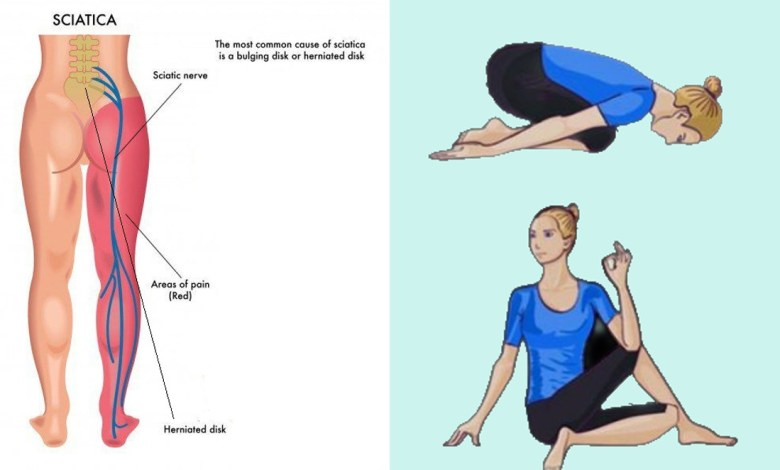 9 Yoga Poses For Sciatica Pain Relief