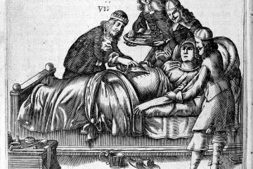 A early modern black and white etching of doctors standing around a woman undergoing a cesarean section