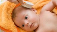 Casquinhas na cabeça: Quando elas aparecem, a gente acha que não estava lavando a cabecinha do bebê direito. Entretanto essa crostinha aparece muito provavelmente por causa da influência dos hormônios (malditos hormônios) nas glândulas sebáceas. Escovar a cabeça do bebê com aquela escovinha macia e um pouco de óleo para bebê, antes do banho, ajuda bastante a amenizar o problema.