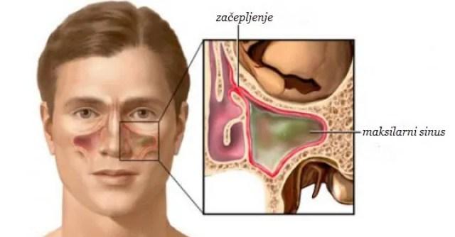 Rezultat slika za začepljen nos