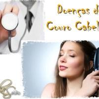 Doenças do Couro Cabeludo