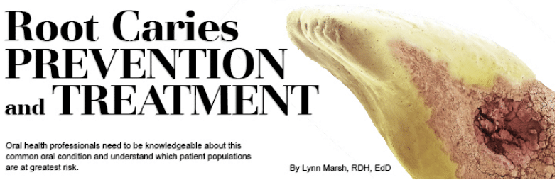 Root Caries Prevention And Treatment Dimensions Of Dental Hygiene